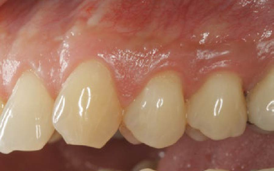 Healthy gum tissue after surgical procedure
